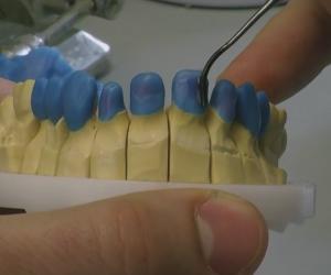 Ειδικότητα Βοηθού Οδοντοτεχνίτη